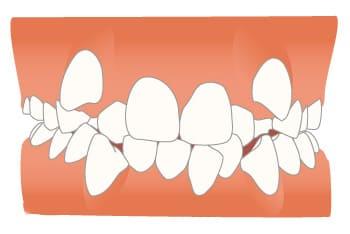 千葉県 市川市 八幡 本八幡駅前ミツル歯科 上の歯が前に突出している