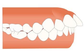 千葉県 市川市 八幡 本八幡駅前ミツル歯科 下の歯が前に突出している