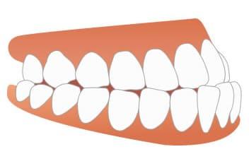 千葉県 市川市 八幡 本八幡駅前ミツル歯科 歯と歯との間に隙間がある