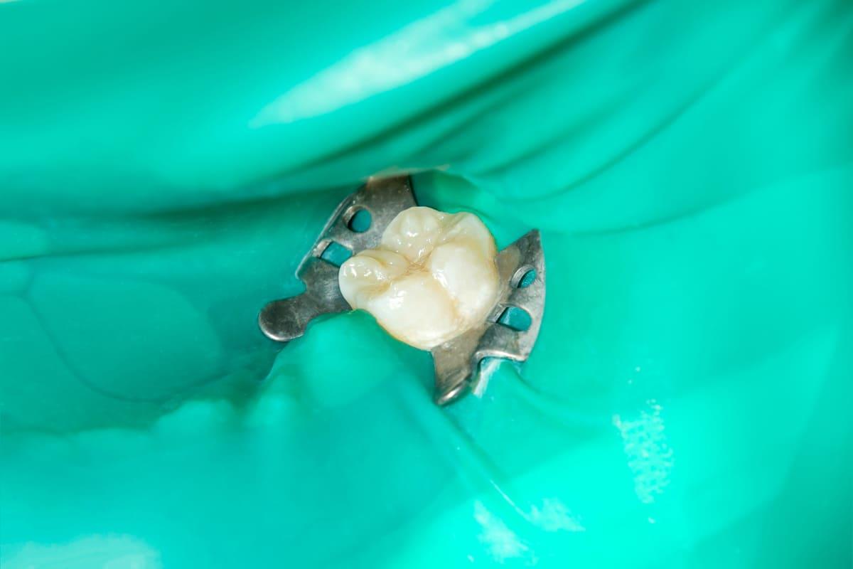 千葉県 市川市 八幡 本八幡駅前ミツル歯科 ラバーダムを用いる精密根管治療