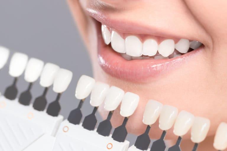 千葉県 市川市 八幡 本八幡駅前ミツル歯科 当院で採用するビヨンドオフィスホワイトニングの特徴