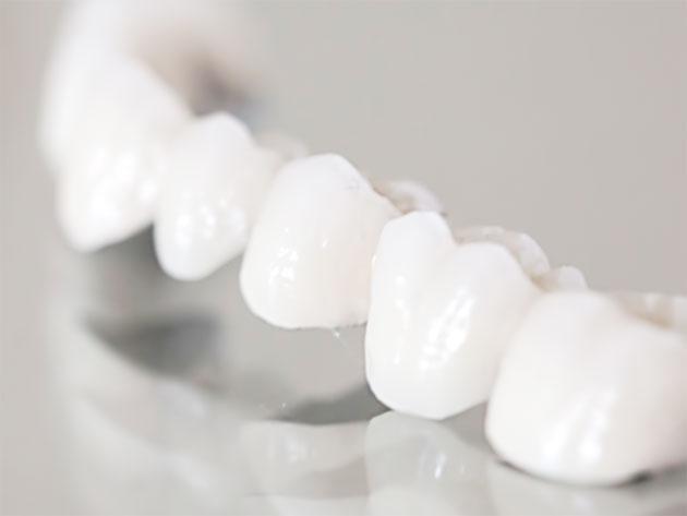 クリスタルミツル歯科 美容診療 セラミックス