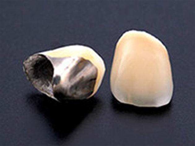 クリスタルミツル歯科 美容診療 レジン(プラスチック)