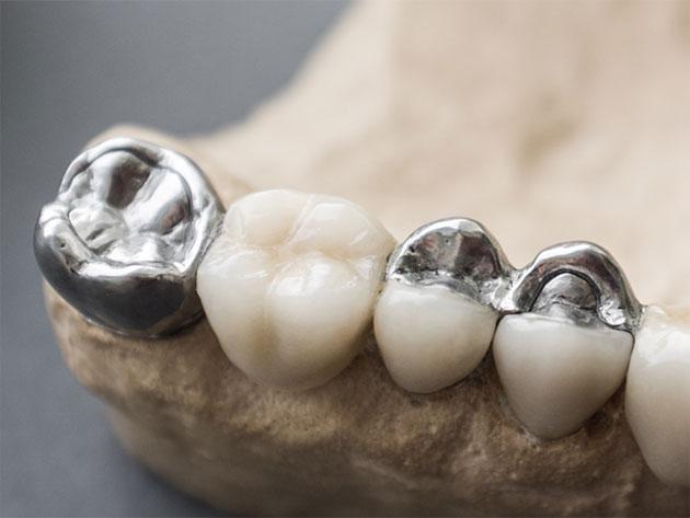 クリスタルミツル歯科 美容診療 銀歯
