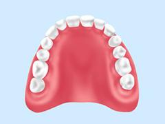 クリスタルミツル歯科 入れ歯 レジン床義歯