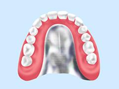 クリスタルミツル歯科 入れ歯 金属床義歯