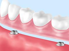 クリスタルミツル歯科 入れ歯 マグネットデンチャー
