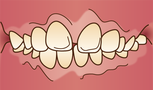 クリスタルミツル歯科 矯正治療 上顎前突
