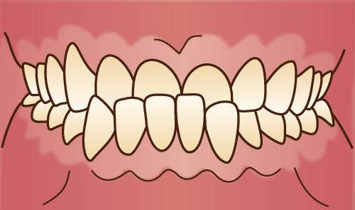 クリスタルミツル歯科 矯正治療 下顎前突