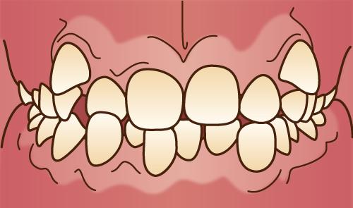 クリスタルミツル歯科 矯正治療 叢生