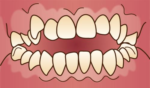 クリスタルミツル歯科 矯正治療 開咬