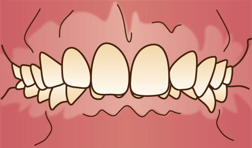 クリスタルミツル歯科 矯正治療 過蓋咬合