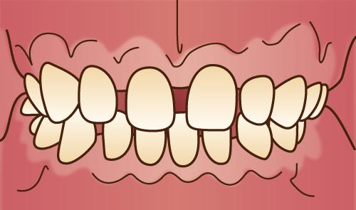 クリスタルミツル歯科 矯正治療 空隙歯列