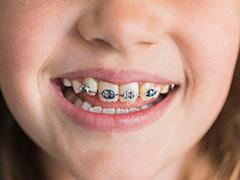 クリスタルミツル歯科 入れ歯 カウンセリング
