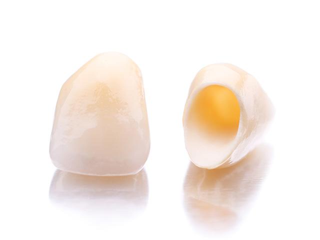 クリスタルミツル歯科 自分一人じゃないから良い結果を目指せる